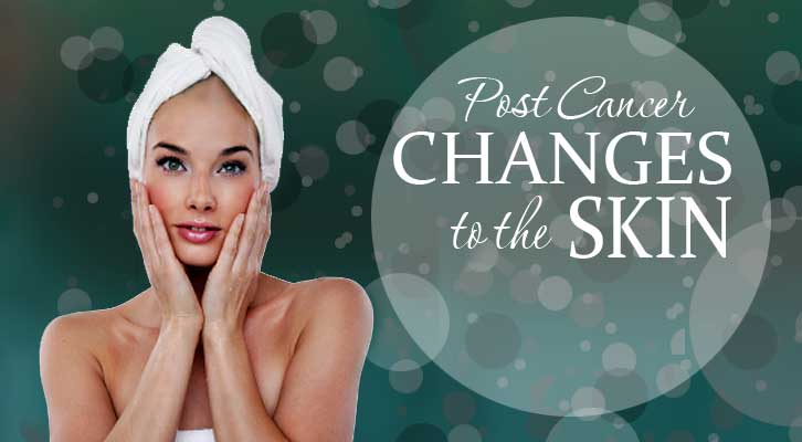 Proper Skin Care After Cancer